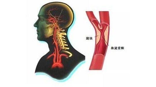 """警惕斑块成为埋在颈动脉内的""""定时炸弹"""""""