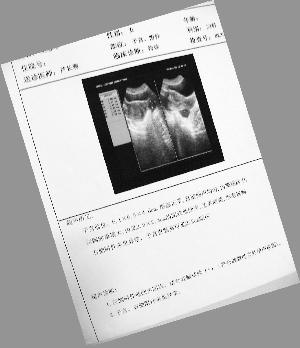 荒唐手术:宫外孕开腹后成囊肿_中国甘肃网